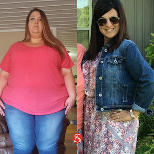 Jessica-Gastric-Sleeve-Before-After-163lb-Weight-Loss