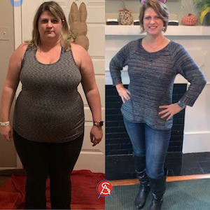 Murriah-Gastric-Bypass-Before-After-104lb-Weight-Loss